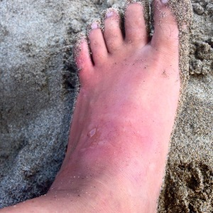an occupational hazard of the beach: Jellyfish stings. Marbella has a million of them.